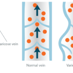 It's Time To Rethink Varicose Veins! #RethinkVaricose